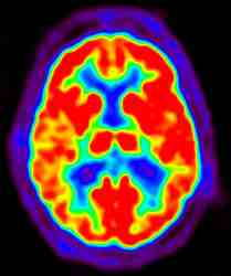 harvard_study_using_brain_scans1